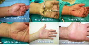 Carpal-Tunnel-Surgery