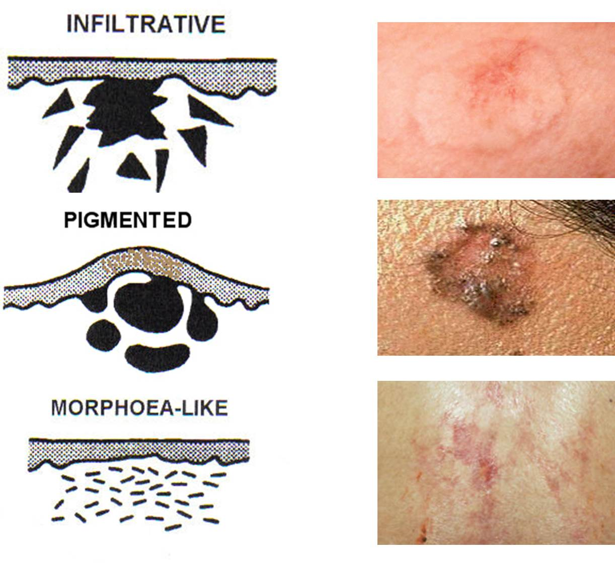 Clinical variants of Basal cell carcinoma (BCC)