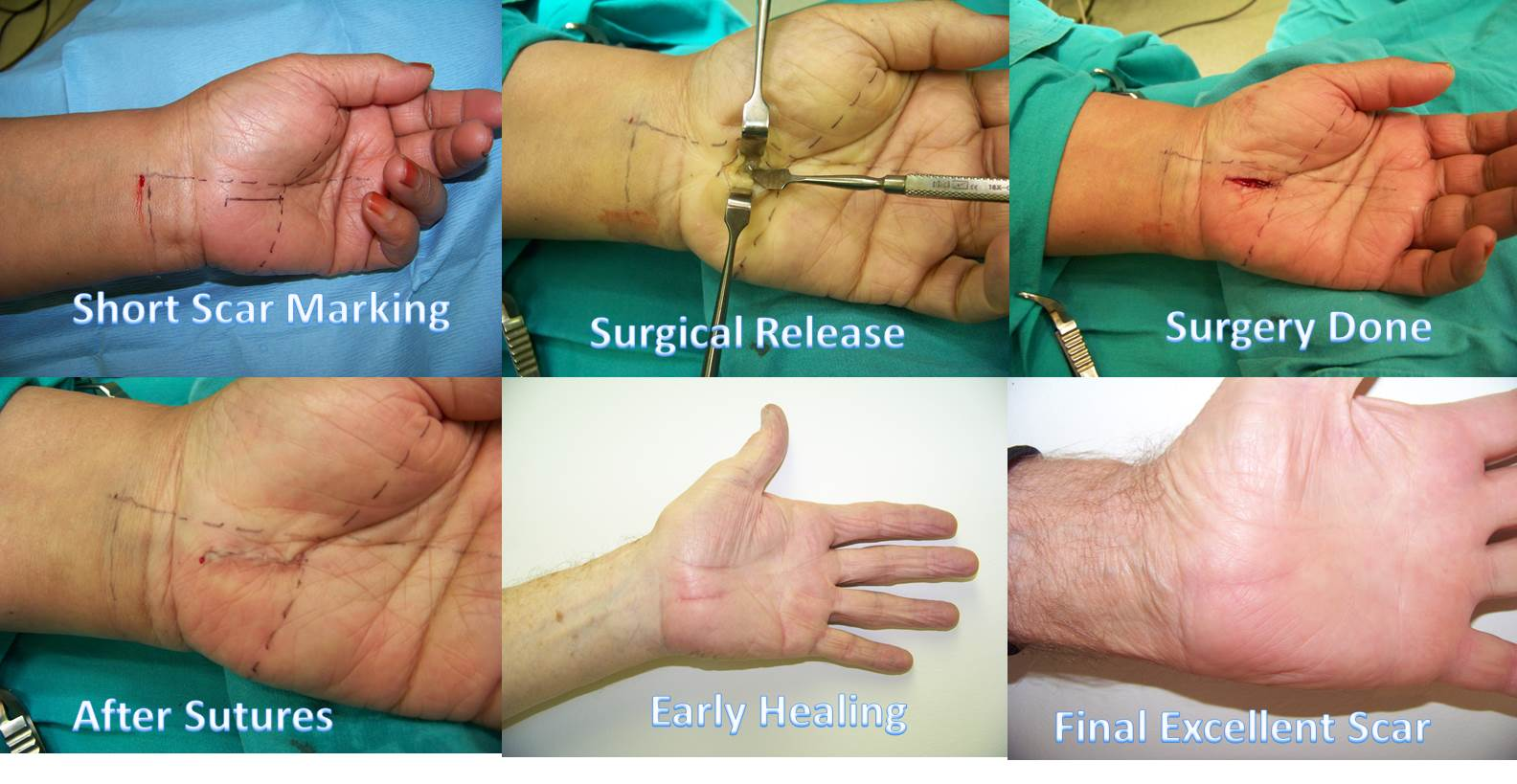 Carpal Tunnel Surgery - short scar open technique and results